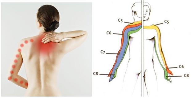L'Étiopathie, pour soigner la névralgie cervico-brachiale ...